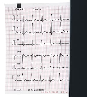 CardioPad-2_paper